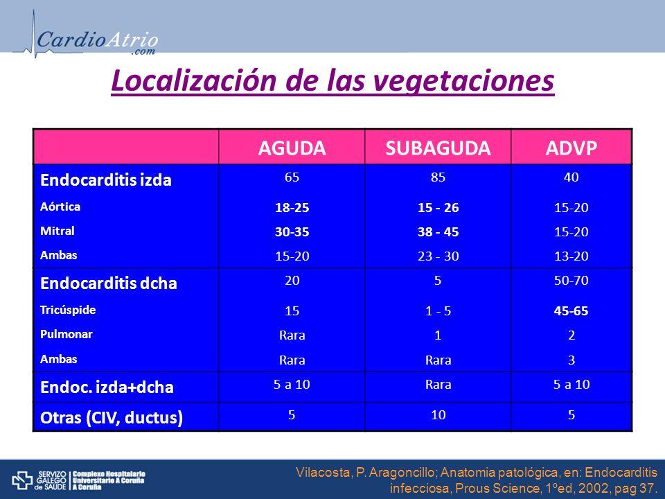 Localización de las vegetaciones