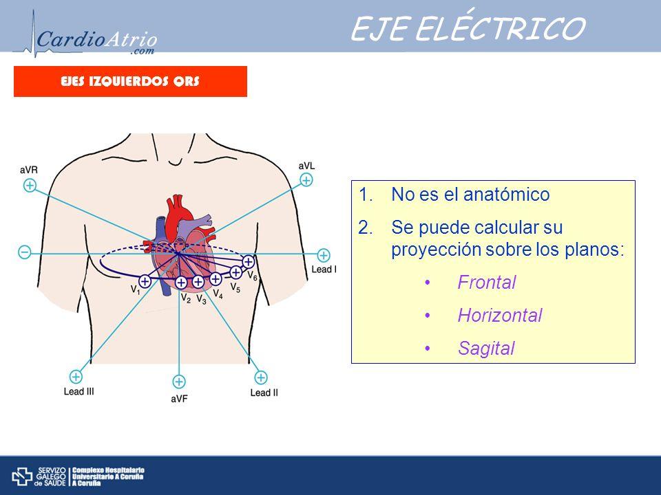 EJE ELÉCTRICO No es el anatómico