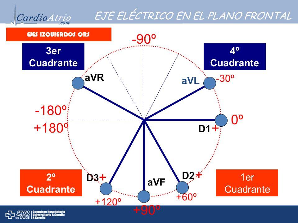 EJE ELÉCTRICO EN EL PLANO FRONTAL