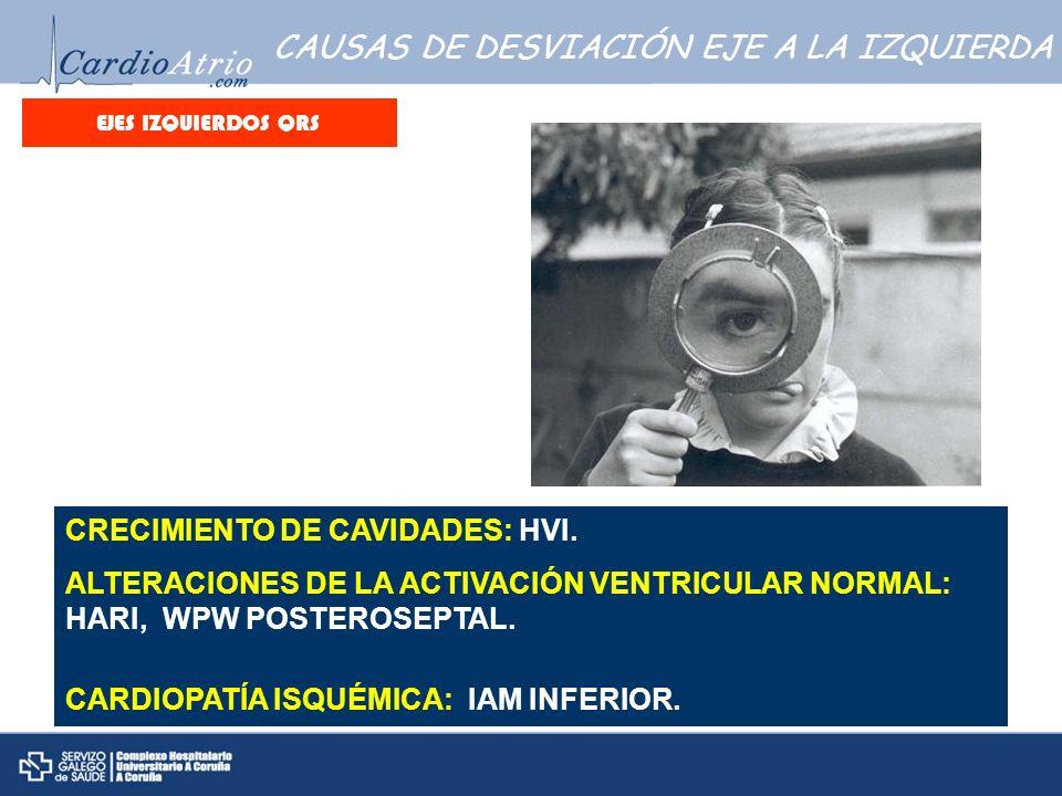 CAUSAS DE DESVIACIÓN EJE A LA IZQUIERDA