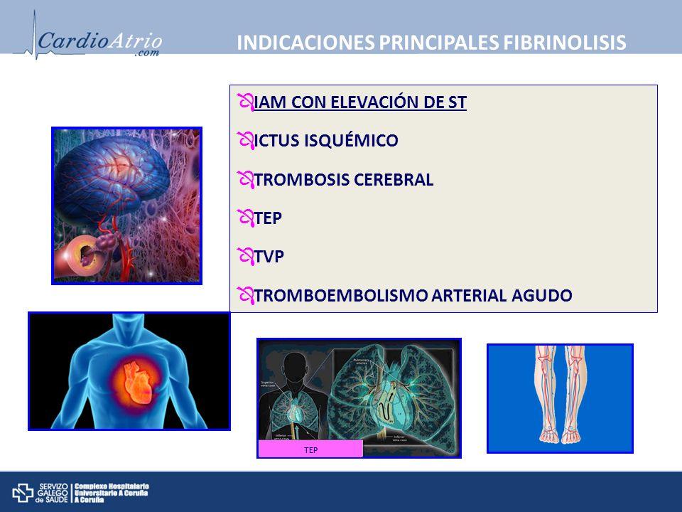 INDICACIONES PRINCIPALES FIBRINOLISIS