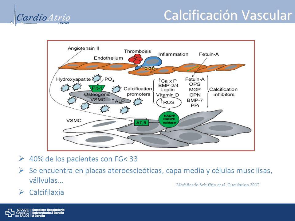 Calcificación Vascular