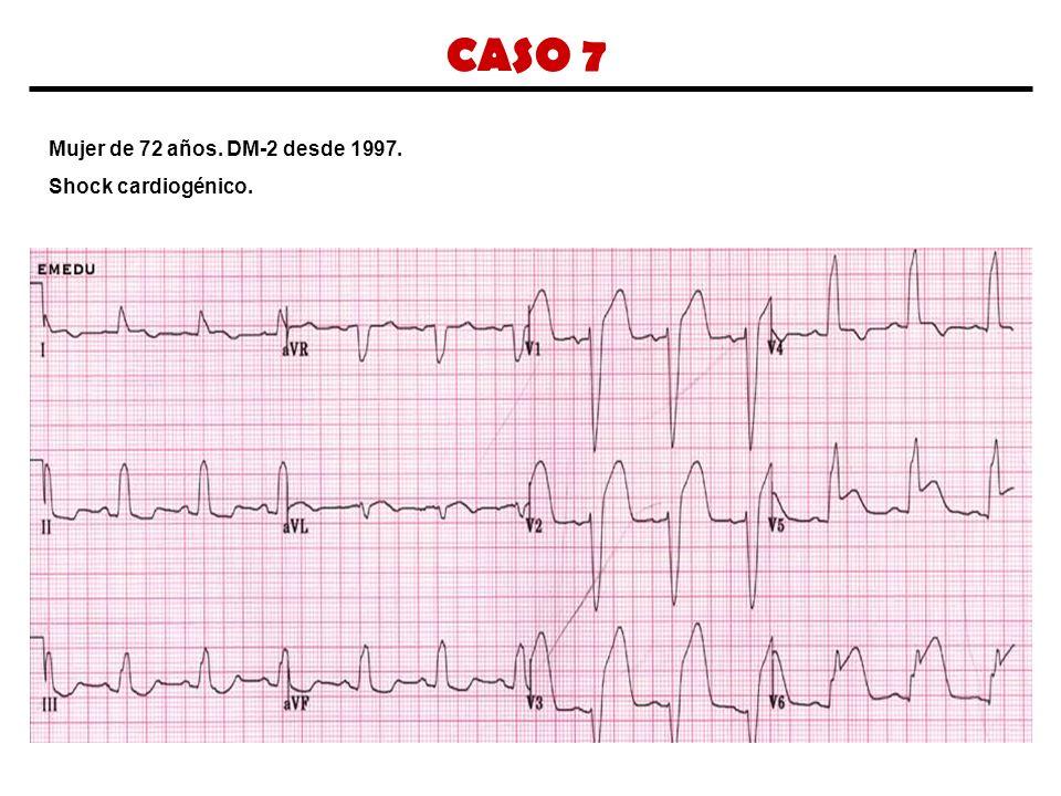 CASO 7 Mujer de 72 años. DM-2 desde 1997. Shock cardiogénico.