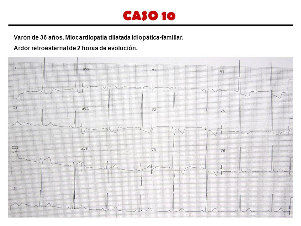 CASO 10 Varón de 36 años. Miocardiopatía dilatada idiopática-familiar.