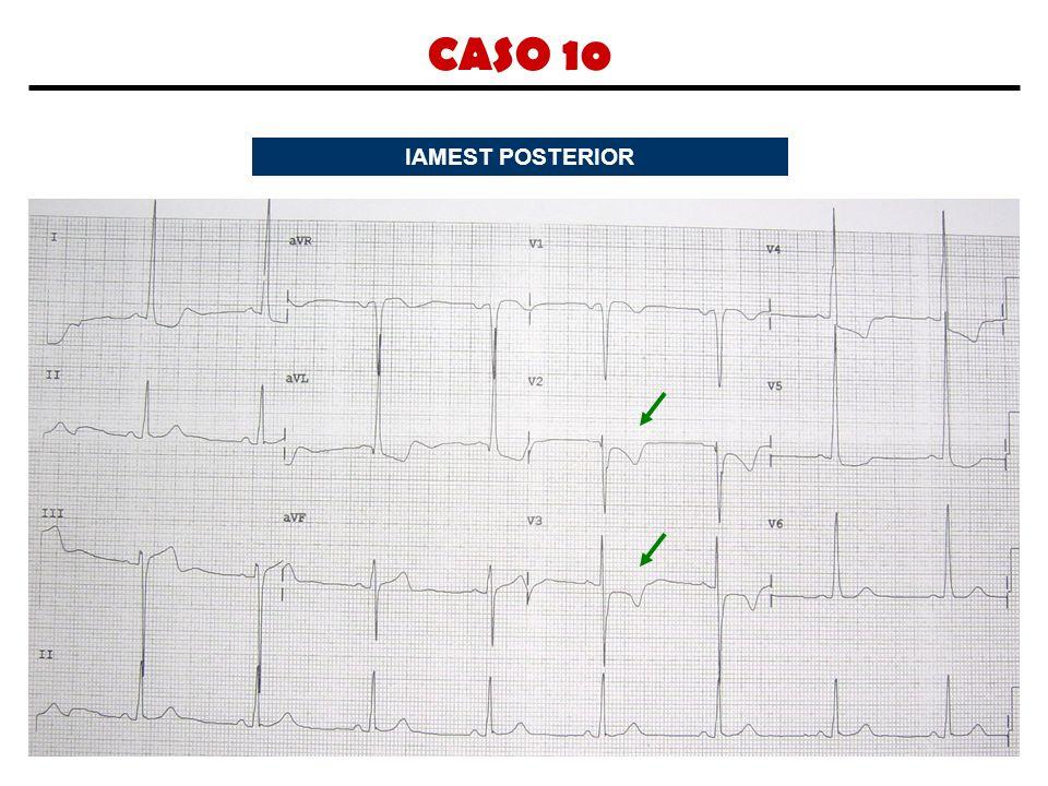 CASO 10 IAMEST POSTERIOR