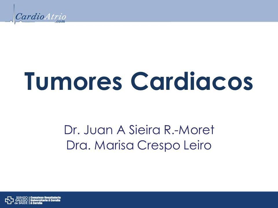 Tumores Cardiacos Dr. Juan A Sieira R.-Moret Dra. Marisa Crespo Leiro