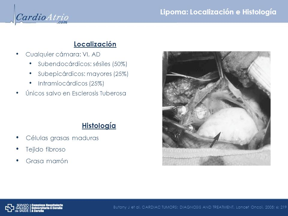 Lipoma: Localización e Histología
