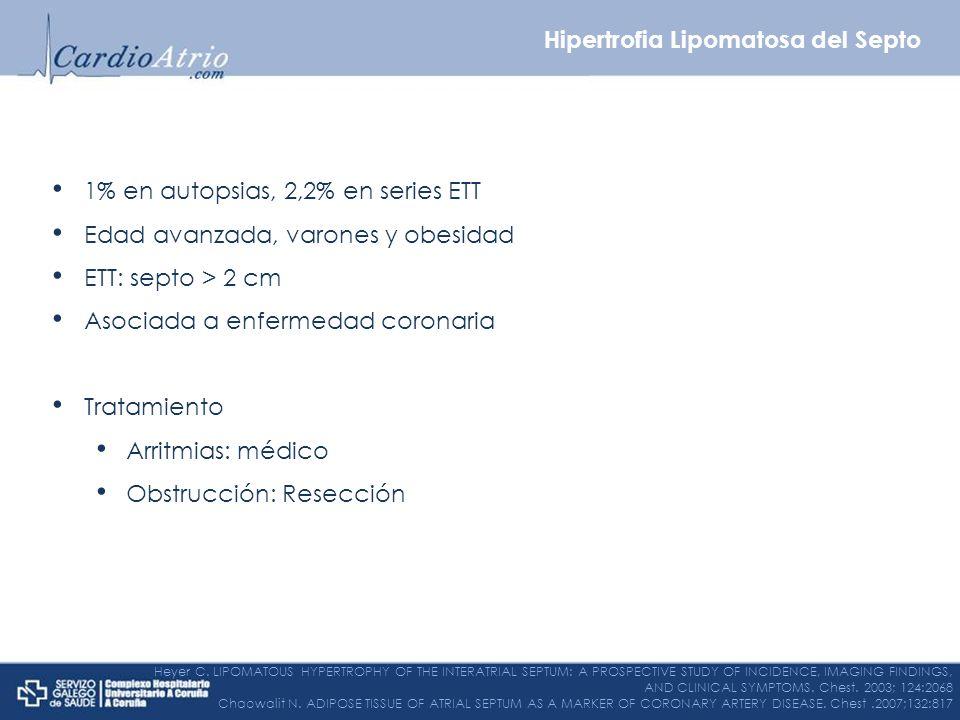 Hipertrofia Lipomatosa del Septo