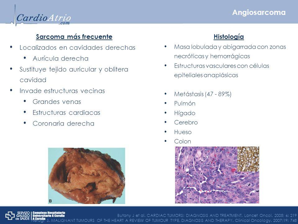 Angiosarcoma Sarcoma más frecuente Localizados en cavidades derechas