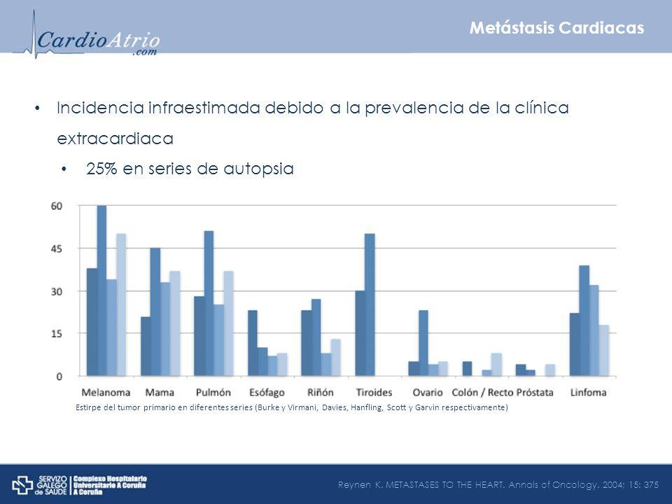 Metástasis Cardiacas Incidencia infraestimada debido a la prevalencia de la clínica extracardiaca. 25% en series de autopsia.