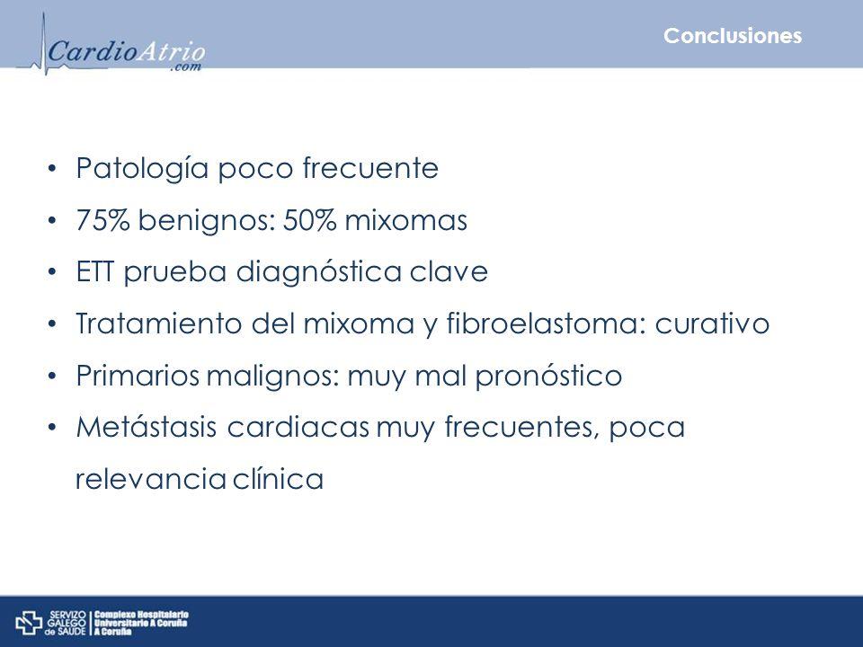 Patología poco frecuente 75% benignos: 50% mixomas
