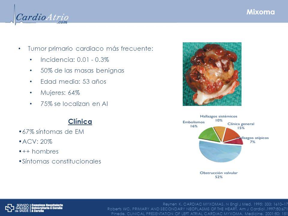 Mixoma Clínica Tumor primario cardiaco más frecuente: