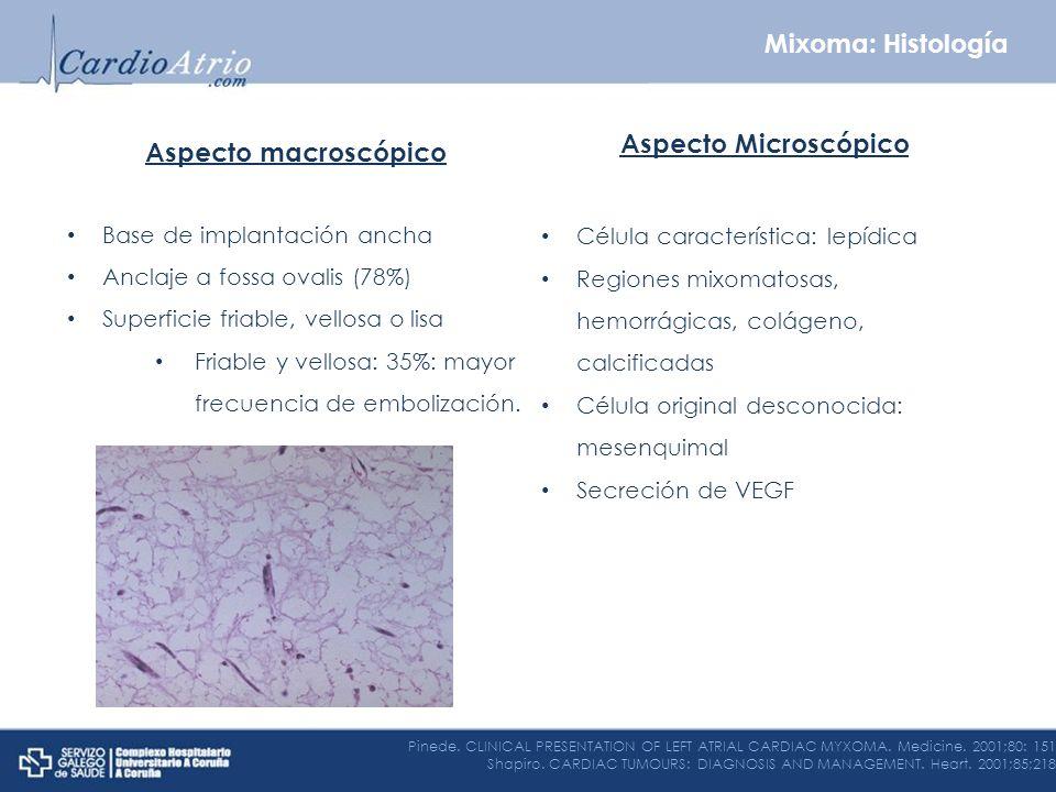 Mixoma: Histología Aspecto Microscópico Aspecto macroscópico
