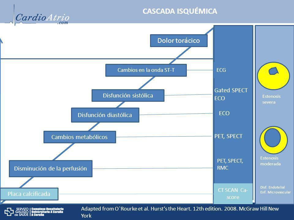 CASCADA ISQUÉMICA Dolor torácico Calcificación placa Gated SPECT ECO