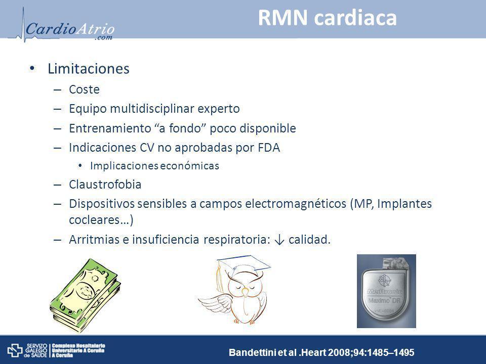 RMN cardiaca Limitaciones Coste Equipo multidisciplinar experto