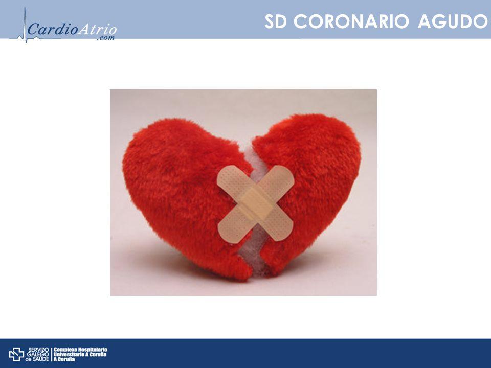 SD CORONARIO AGUDO