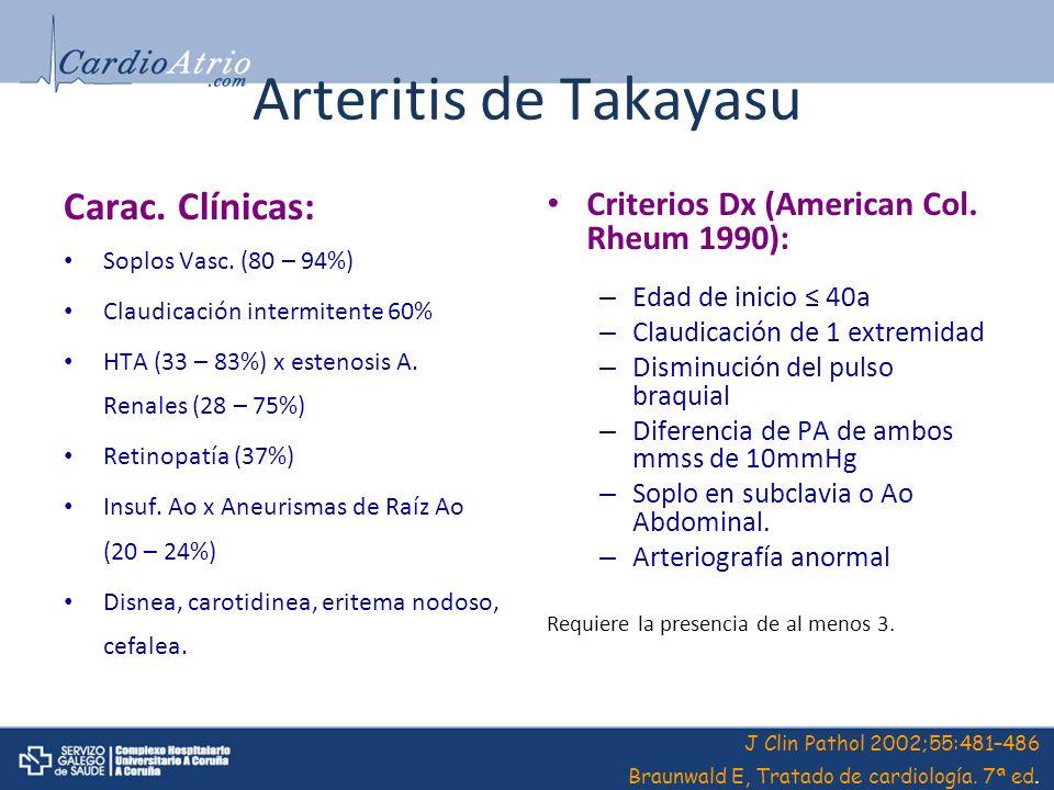 Arteritis de Takayasu Carac. Clínicas: