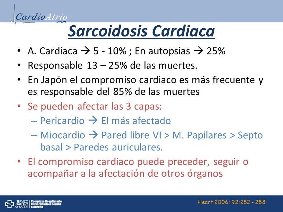 Sarcoidosis Cardiaca A. Cardiaca  5 - 10% ; En autopsias  25%