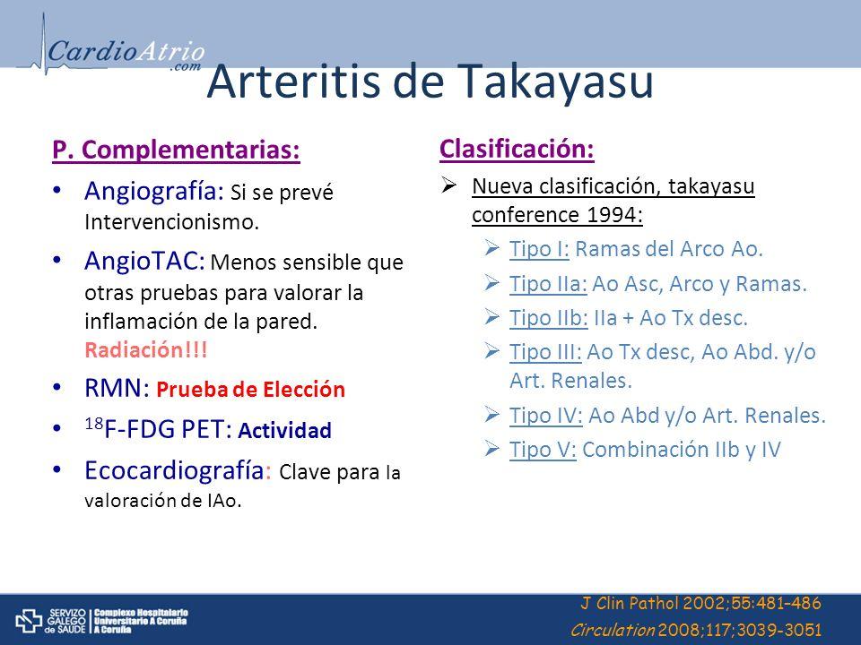 Arteritis de Takayasu P. Complementarias: Clasificación: