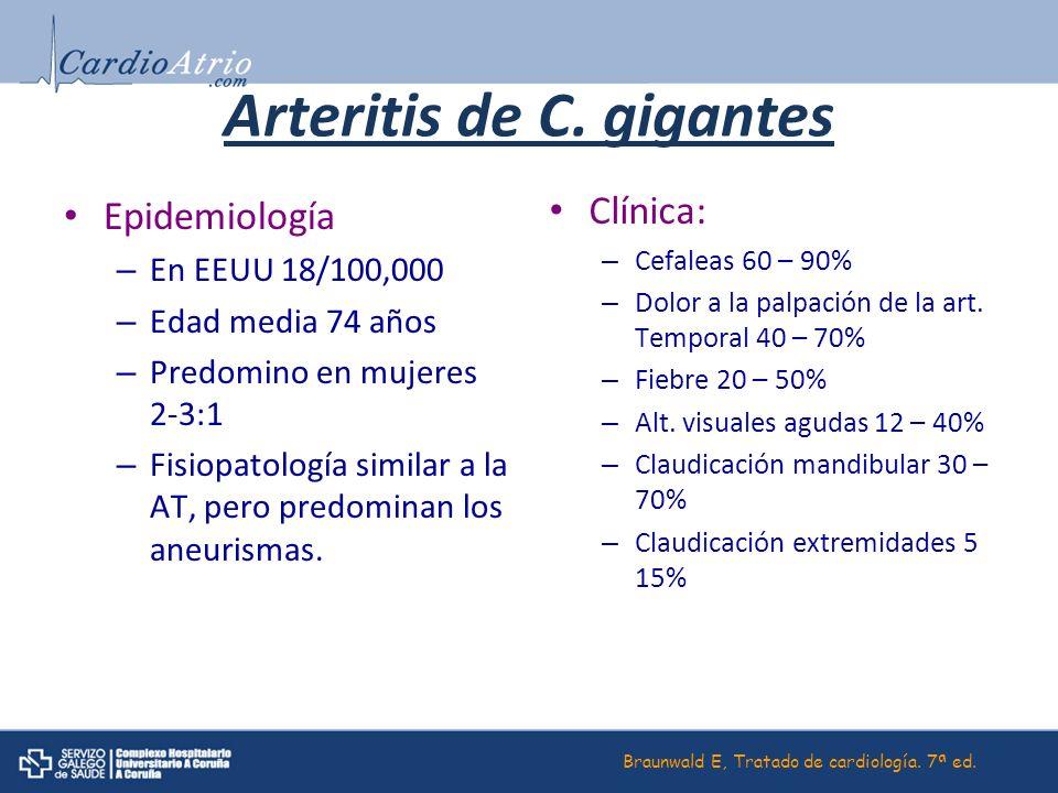 Arteritis de C. gigantes