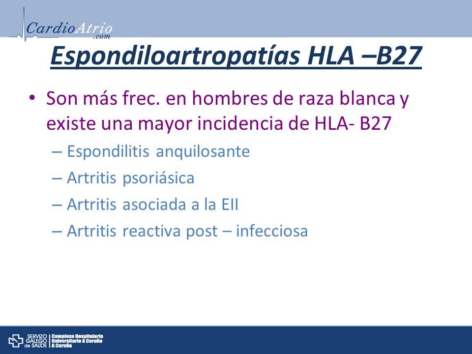 Espondiloartropatías HLA –B27