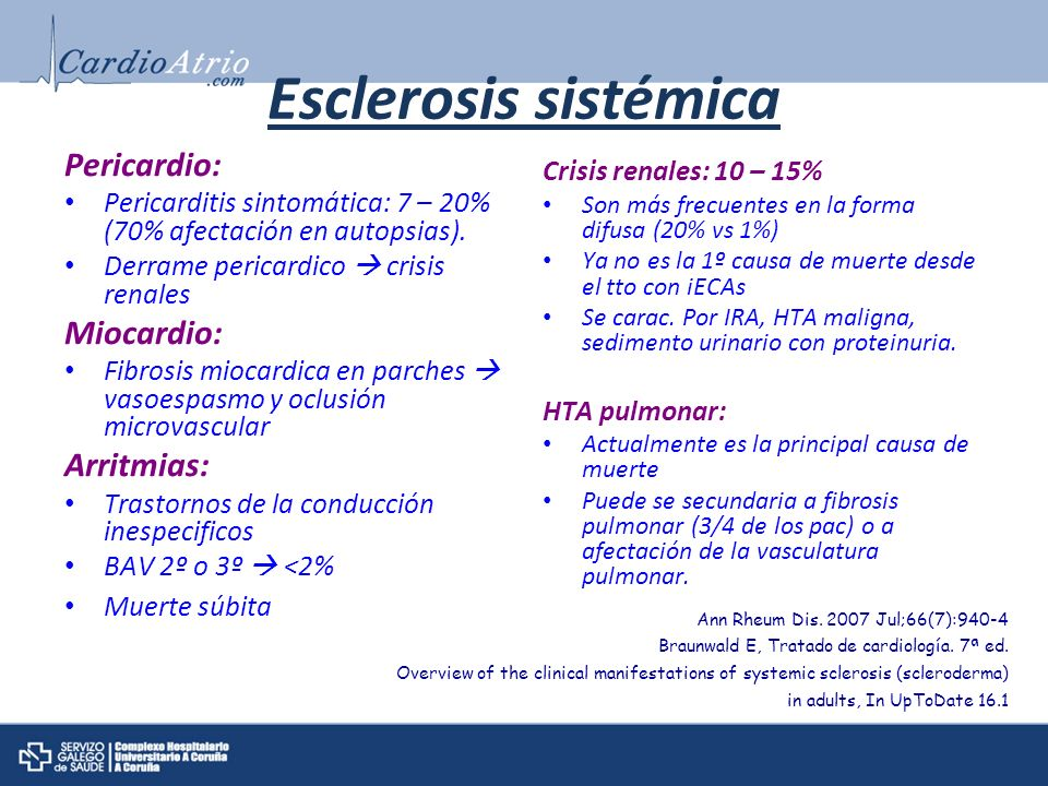 Esclerosis sistémica Pericardio: Miocardio: Arritmias: