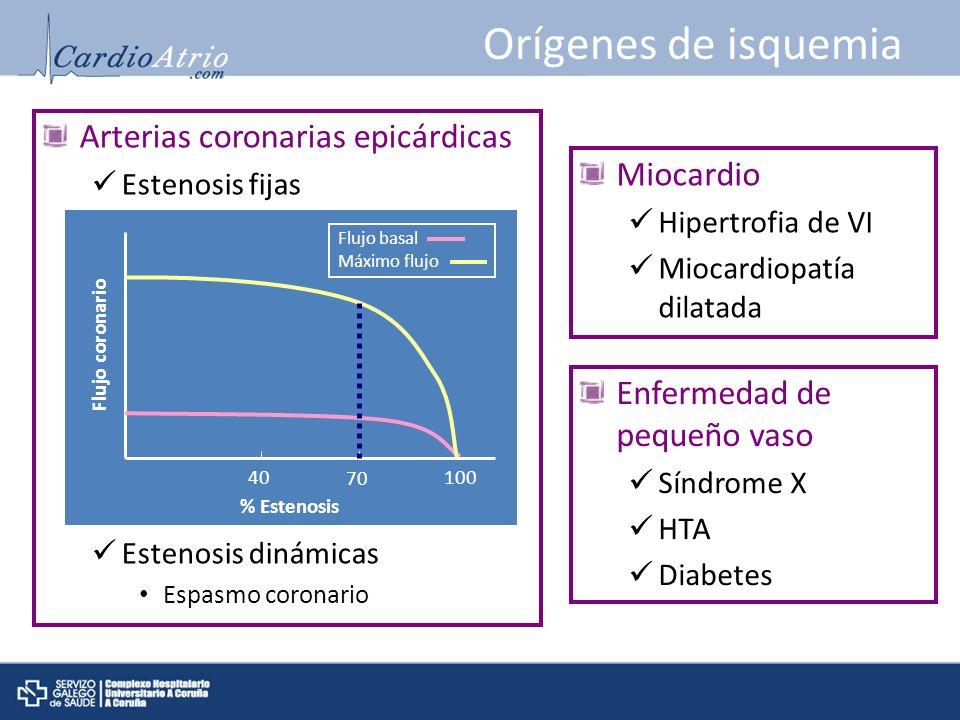 Orígenes de isquemia Arterias coronarias epicárdicas Miocardio