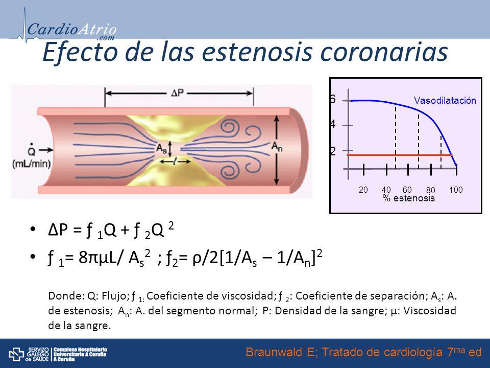 Efecto de las estenosis coronarias