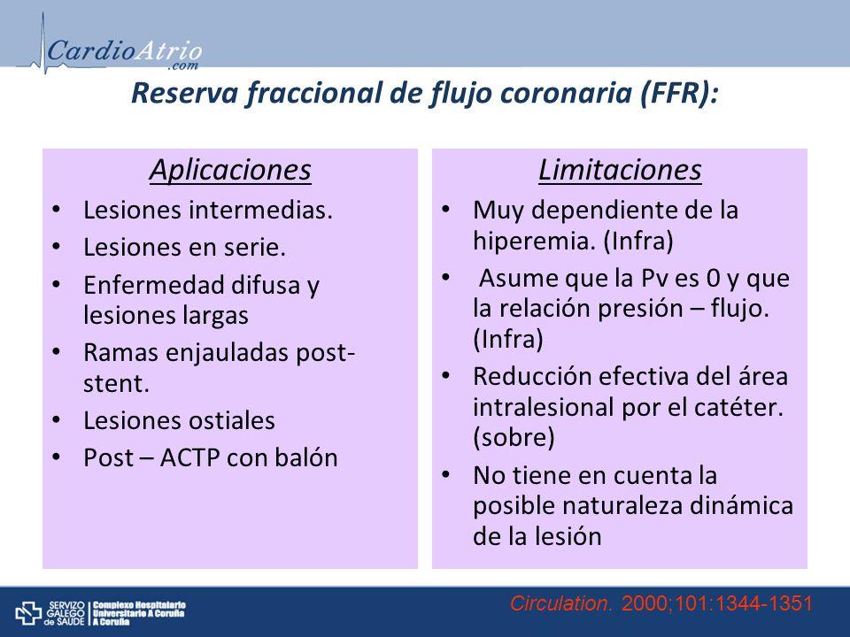 Reserva fraccional de flujo coronaria (FFR):