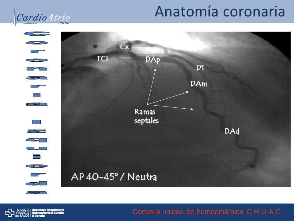 Anatomía coronaria Coronaria Izquierda AP 40-45º / Neutra Cx TCI DAp
