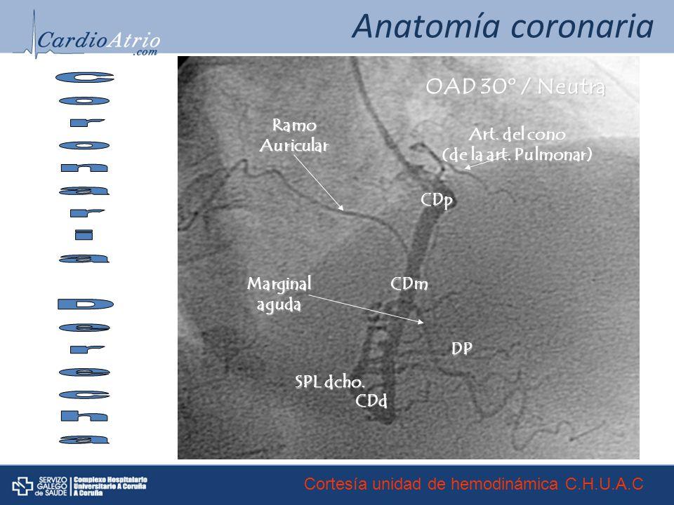 Anatomía coronaria Coronaria Derecha OAD 30º / Neutra CDp CDm CDd