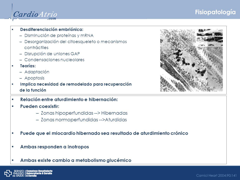 Fisiopatología Relación entre aturdimiento e hibernación: