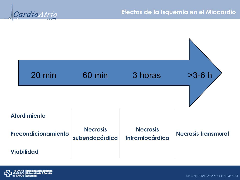 Efectos de la Isquemia en el Miocardio