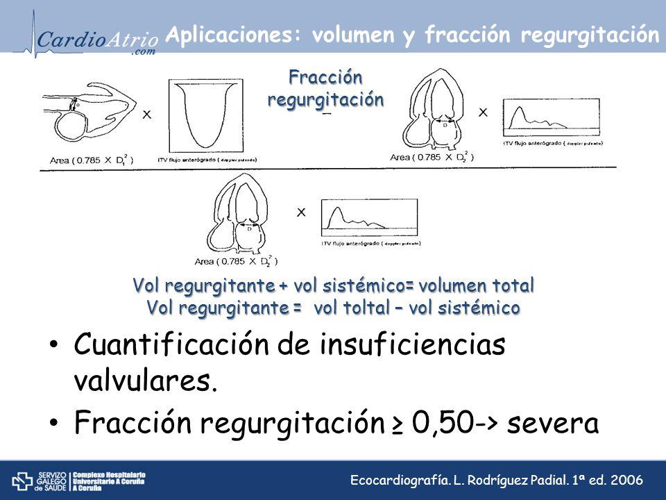 Aplicaciones: volumen y fracción regurgitación