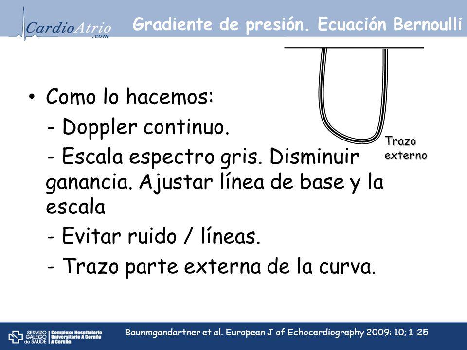 Gradiente de presión. Ecuación Bernoulli