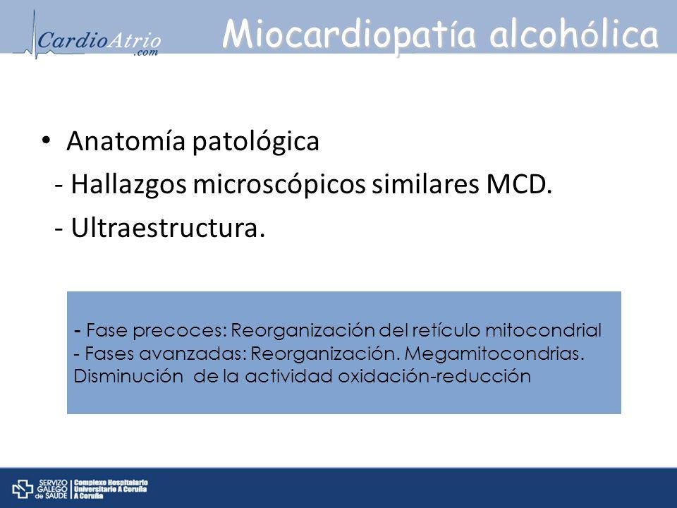 Miocardiopatía alcohólica