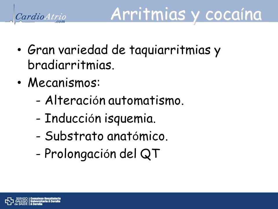 Arritmias y cocaína Gran variedad de taquiarritmias y bradiarritmias.