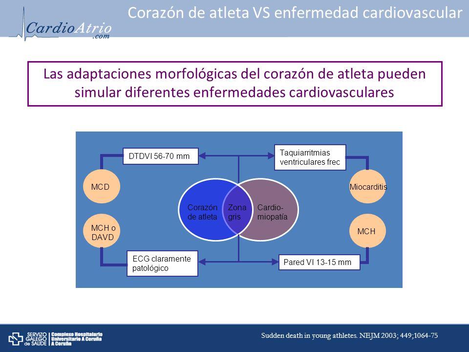 Corazón de atleta VS enfermedad cardiovascular
