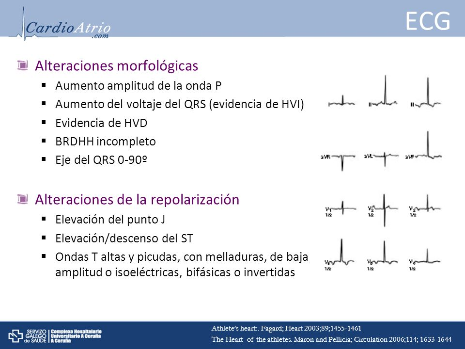 ECG Alteraciones morfológicas Alteraciones de la repolarización