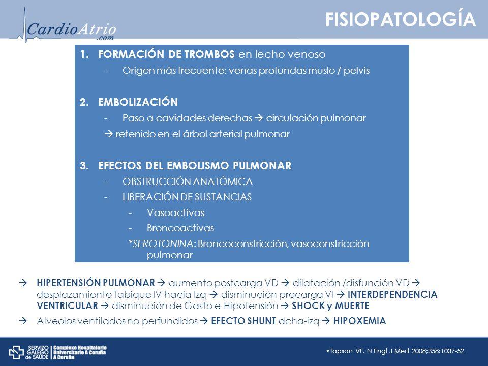 FISIOPATOLOGÍA FORMACIÓN DE TROMBOS en lecho venoso EMBOLIZACIÓN