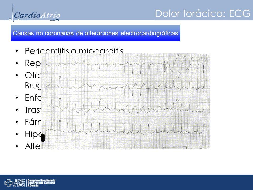 Causas no coronarias de alteraciones electrocardiográficas