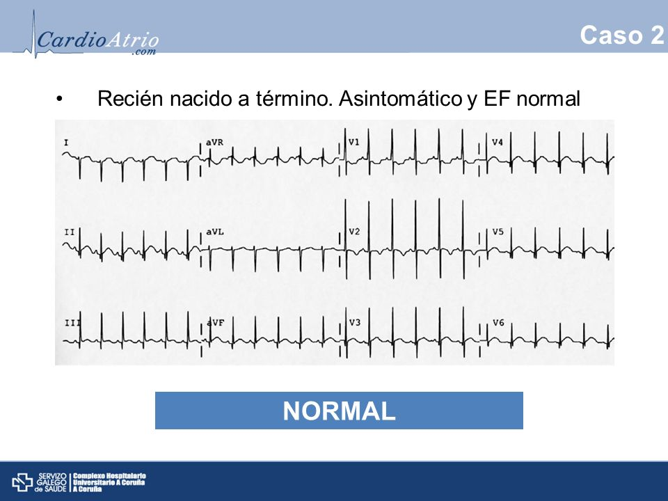 Caso 2 NORMAL Recién nacido a término. Asintomático y EF normal normal
