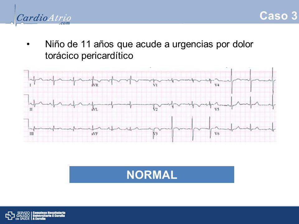 Caso 3 Niño de 11 años que acude a urgencias por dolor torácico pericardítico Normal NORMAL 11