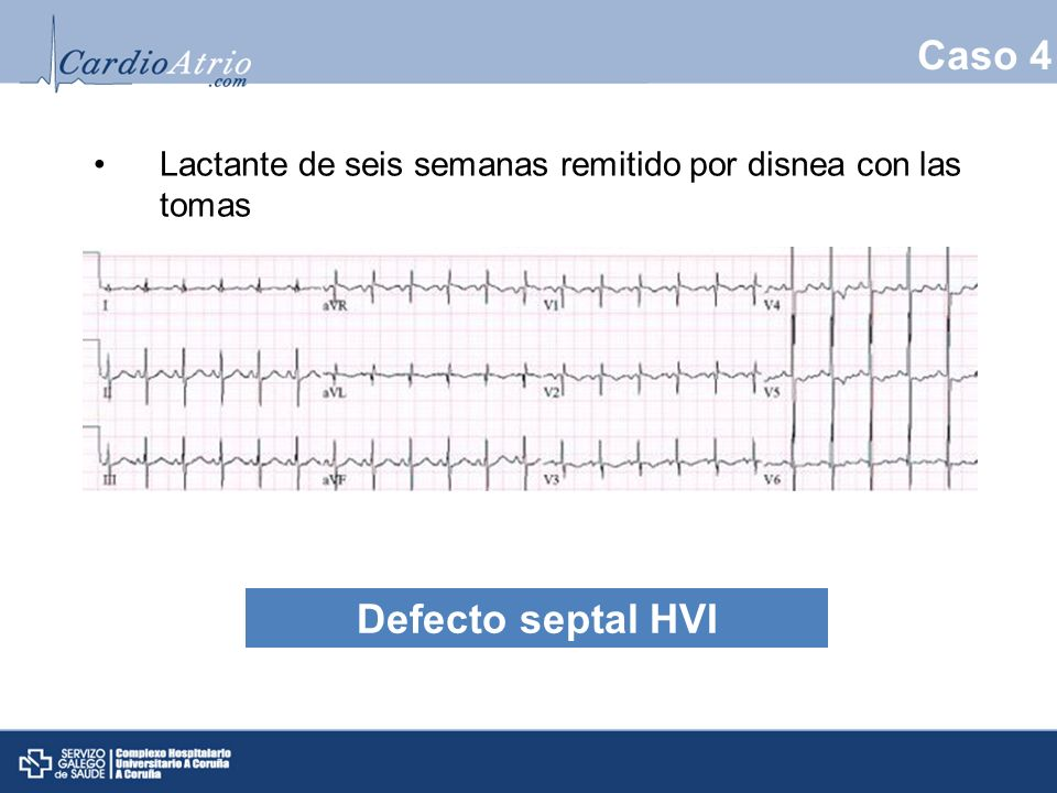 Caso 4 Defecto septal HVI