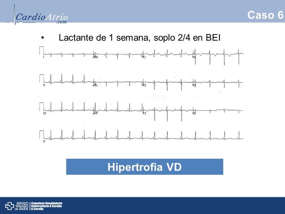 Caso 6 Lactante de 1 semana, soplo 2/4 en BEI HVD Hipertrofia VD 14