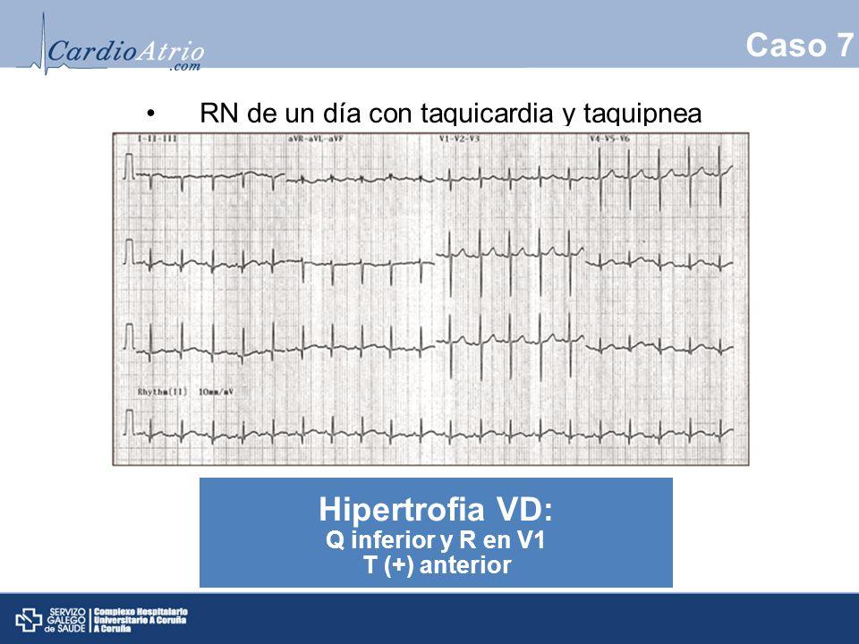 Caso 7 Hipertrofia VD: RN de un día con taquicardia y taquipnea