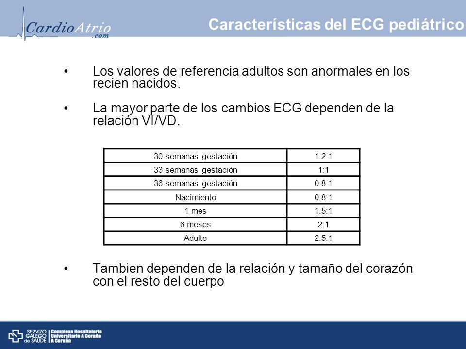 Características del ECG pediátrico