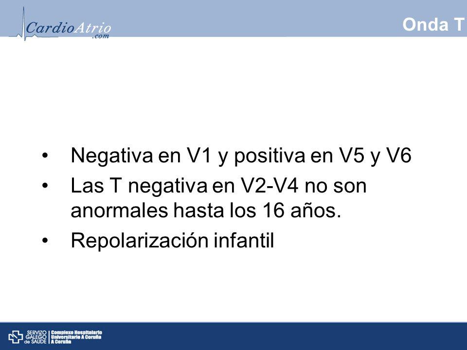 Negativa en V1 y positiva en V5 y V6