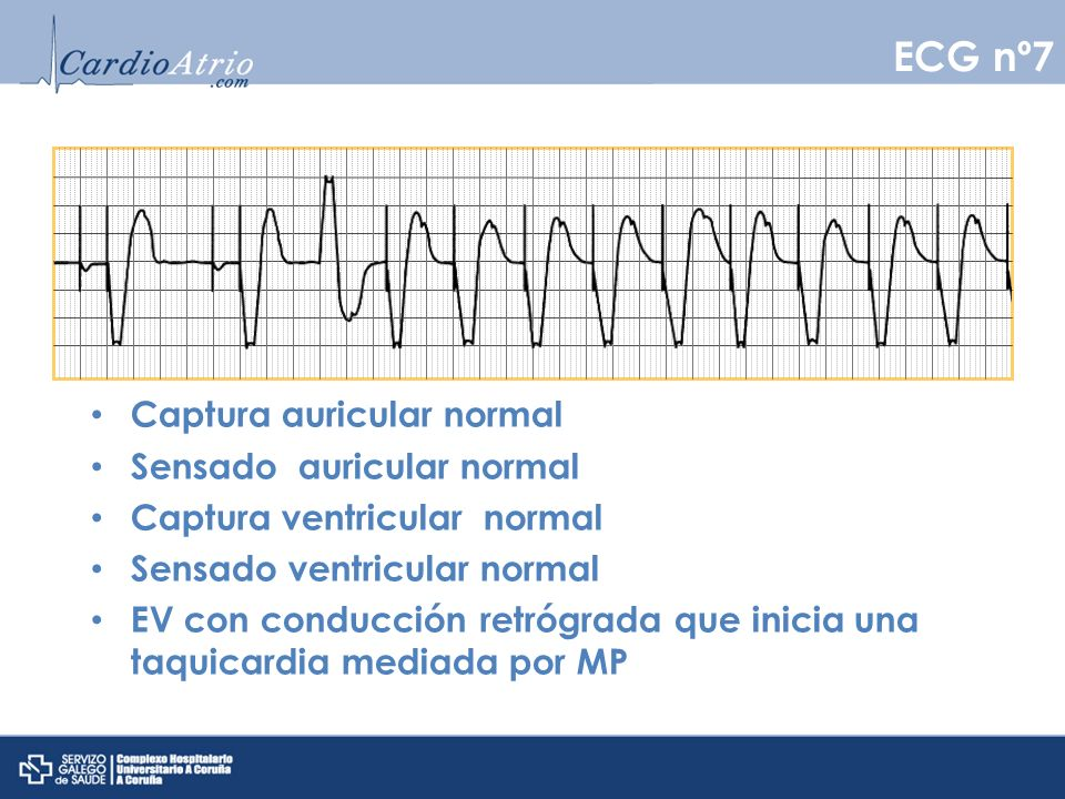 ECG nº7 Captura auricular normal Sensado auricular normal