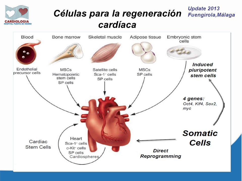 Células para la regeneración cardíaca